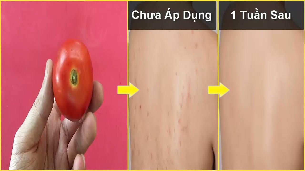 Cà chua tươi trị mụn lưng có hiệu quả nhanh chỉ sau 1 tuần