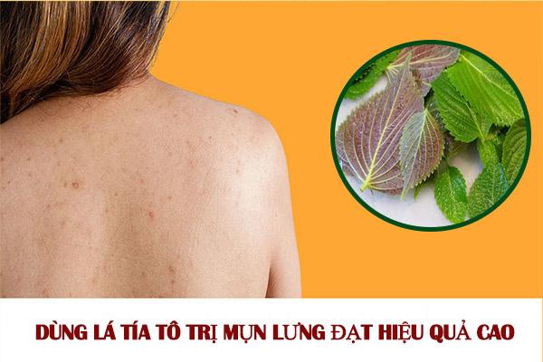 Cách dùng lá tía tô trị mụn lưng cấp tốc hiệu quả đến 99%